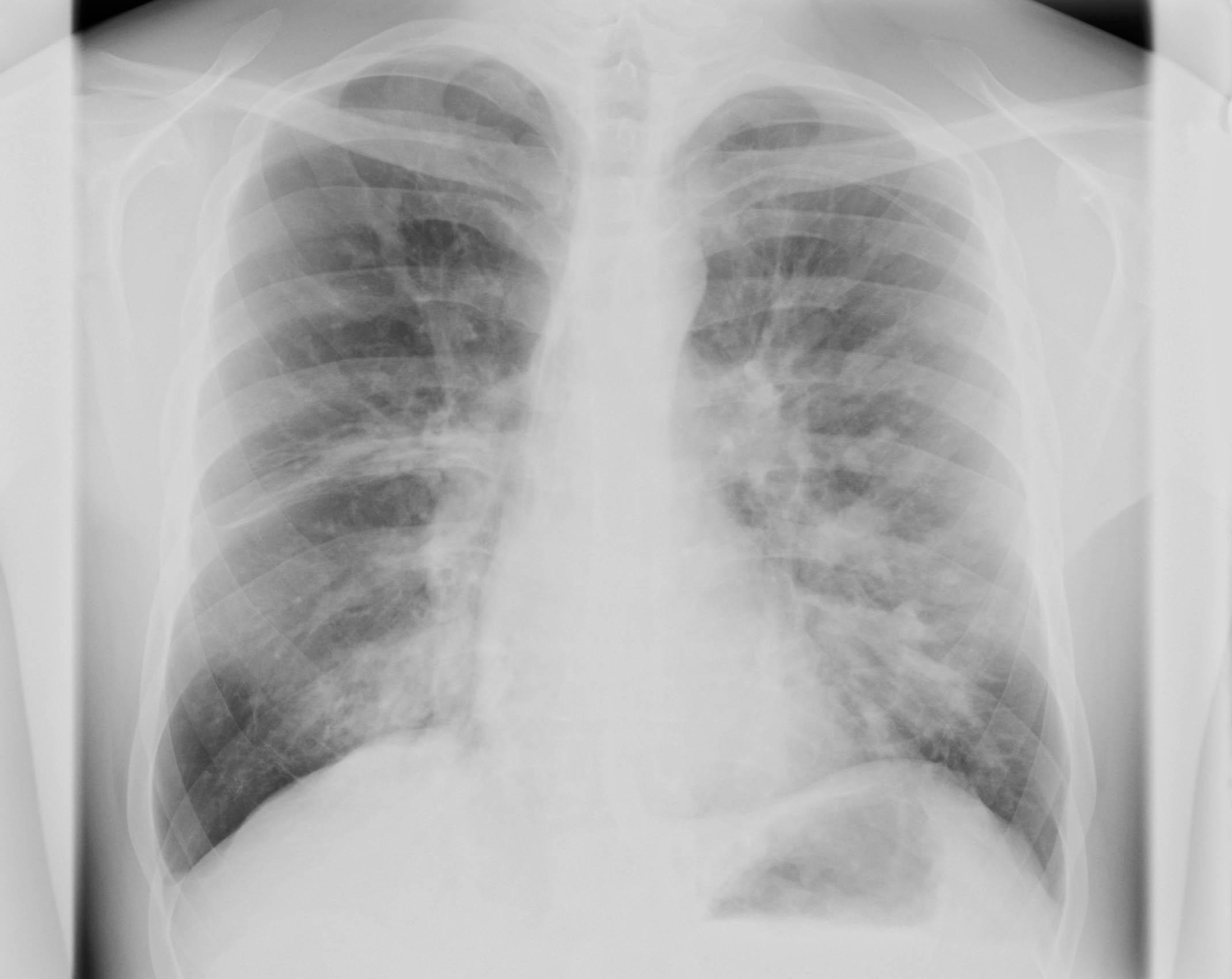 Heilung für die Lunge... 1